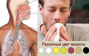 influensa symptomer uten feber