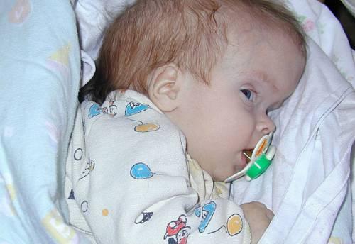 Окружность головы ребенка по месяцам