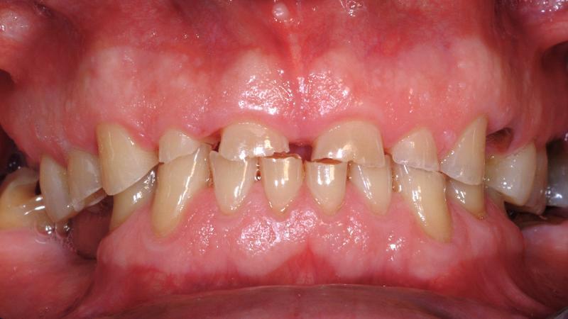 mangler litt tannkjøtt på en tann
